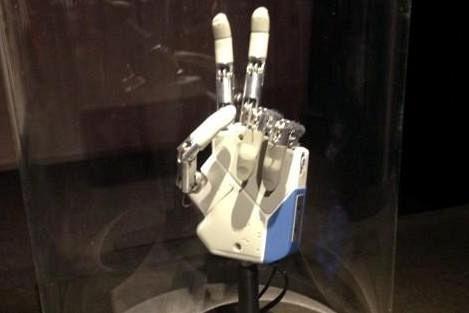 La mano bionica è realtà per una donna italiana